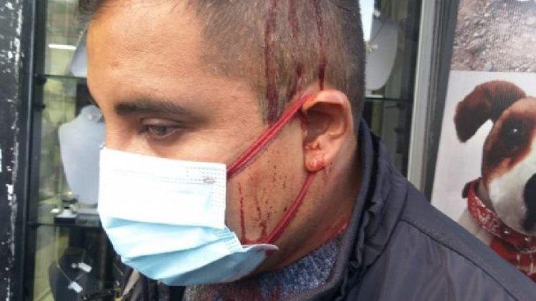 Violencia de grupos de choque del MAS, obligan al Conade a suspender marcha